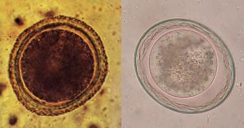 Toxocariosis, huevos de Toxocara