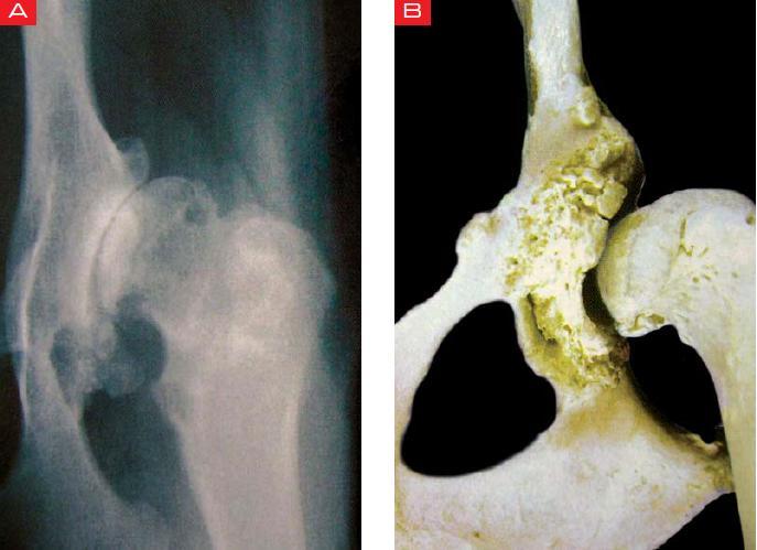 como se ve artrosis en radiografia