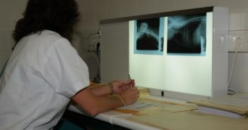 Radiografías para la exploración del tórax