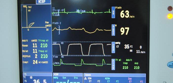 Monitorización anestésica del sistema cardiovascular