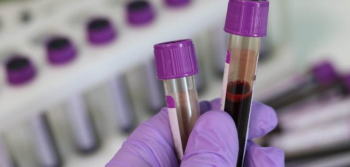 Material necesario para la extracción de sangre